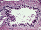 Human Pancreatic Duct Section Lined by Simple Columnar Epithelium with Fibrous Tissue Wall, LM X64 Photographic Print by Gladden Willis