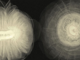 X-Ray of Ranunculus Flowers Photographic Print by George Taylor
