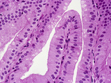 Normal Human Gallbladder Mucosal Folds or Rugae Lined by Simple Columnar Epithelium, LM X100 Photographic Print by Gladden Willis