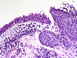 Squamous Cell Carcinoma of the Lung Photographic Print by Gladden Willis
