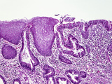 Longitudinal-Section of the Junction of the Human Esophagus and Stomach, H&E Stain, LM X26 Photographic Print by Gladden Willis