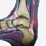 Mri Showing a Severe Rupture of the Achilles Tendon Photographic Print by  Scientifica