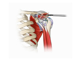 Illustration of Shoulder Acromioplasty Procedure Reproduction procédé giclée par Nucleus Medical Art