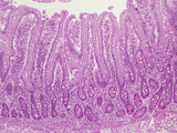 Jejunum of the Human Small Intestine with Villi and Crypts Lined by the Simple Columnar Epithelium Photographic Print by Gladden Willis