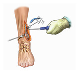 Biomedical Illustration of Medial Ankle Surgical Exposure and Maleollar Fracture Fixation Reproduction procédé giclée par  Nucleus Medical Art