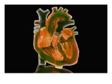 Biomedical Illustration of a Glass Heart Photographic Print by Carol & Mike Werner