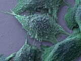 Lung Cancer Cells, SEM Photographic Print by Anne Weston