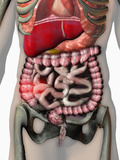 Biomedical Illustration of Inflammatory Bowel Disease (Ibd) Photographic Print by Carol & Mike Werner