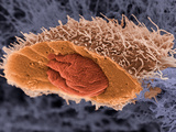 Freeze Fractured Squamous Cell Carcinoma, a Type of Skin Cancer, SEM Photographic Print by  Weston & Marshall