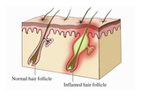 Illustration of Cut Section of Human Skin Comparing a Normal Hair Follicle Giclee Print by  Nucleus Medical Art