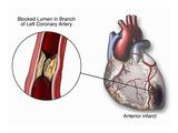 Illustration of a Blocked Coronary Artery of the Human Heart Gicléetryck av  Nucleus Medical Art