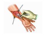 Biomedical Illustration of Fasciotomy to the Ventral Aspect of the Forearm Giclee Print by  Nucleus Medical Art