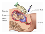 Illustration of the Amniocentesis Pregnancy Test Procedure Showing Needle Aspiration Giclee Print by  Nucleus Medical Art