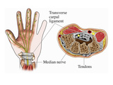 Illustration of the Anatomy of the Carpal Tunnel as Seen from Palmar and Cross-Sectional Views Giclee Print by  Nucleus Medical Art