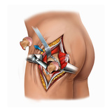 Illustration of Femoral Neck Cut for Placement of Prostheses for a Total Hip Replacement Procedure Giclee Print by  Nucleus Medical Art