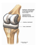 This Medical Exhibit Pictures a Proposed Left Total Knee Joint Replacement Giclee Print by  Nucleus Medical Art