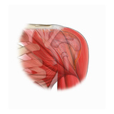 Biomedical Illustration of a Supraspinatus Tendon Tear of the Rotator Cuff Giclee Print by  Nucleus Medical Art