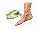 Biomedical Illustration of an Ankle Incision on the Anteromedial Side Giclee Print by  Nucleus Medical Art