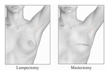 Illustration Showing the Appearance of the Human Breast after a Lumpectomy Procedure Giclee Print by  Nucleus Medical Art