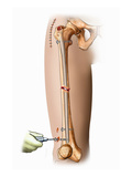 Illustration of Internal Fixation of Femur Fracture with an Intramedullay Rod in Place Giclee Print by  Nucleus Medical Art
