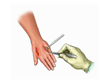 Biomedical Illustration of Fasciotomy of the Dorsum of the Hand with Compartment Syndrome Giclee Print by  Nucleus Medical Art