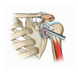 Biomedical Illustration of Shoulder Synovectomy and Labral Tear Debridement Giclee Print by  Nucleus Medical Art