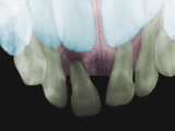Dental X-Ray Showing Baby Teeth with Adult Teeth Behind Them Photographic Print by  Scientifica