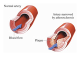 Illustration of Blood Flow Through a Normal Section of Artery Giclee Print by  Nucleus Medical Art