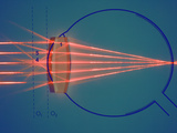 Parallel Rays of Light Enter a Nearsighted Eye with a Corrective Diverging Lens Photographic Print by  Scientifica