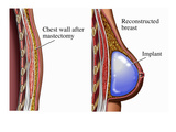 Illustrations of the Primary Reconstruction of the Breast Following a Total Mastectomy Giclee Print by  Nucleus Medical Art