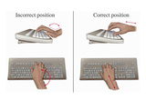 Illustration Showing the Proper and Improper Methods for Keyboard Typing Giclee Print by  Nucleus Medical Art