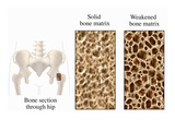 Illustration Depicting Osteoporosis Using Three Illustrations Giclee Print by  Nucleus Medical Art