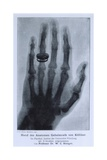 Konrad Roentgen's X-Ray of the Hand of Showing Bones and the Ring, 1895 Poster