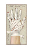 Continuous Finger Bandage, No.48 from the 'First Aid' Series of 'Wills's Cigarettes' Cards, 1913 Giclee Print by  English School