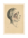 The Head and Neck. Deep View of the Dissection of the Pterygoid Region Giclee Print by G. H. Ford