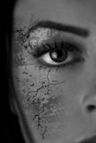 Woman With Skin Ruptures Fotodruck von Ricardo Demurez