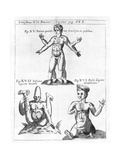 Historical Birth Deformities Giclee Print by Science, Industry and Business Library