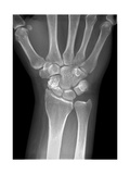 Fractured Wrist, X-ray Giclee Print by Du Cane Medical
