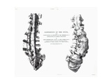 1852 Gideon Mantell Fused Spine Composite Giclee Print by Stewart Stewart