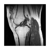 Anterior Cruciate Ligament Tear, CT Scan Giclee Print by Du Cane Medical