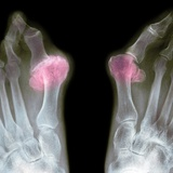 X-ray of Bunions on the Toes Photographic Print by Mike Devlin