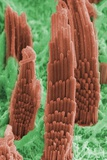 Inner Ear Hair Cells, SEM Photo by Dr. David Furness
