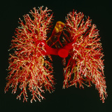 Resin Cast of Pulmonary Arteries And Bronchi Premium Photographic Print by Martin Dohrn
