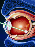 Artwork of Laser Surgery on Detached Retina Photographic Print by John Bavosi