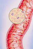 Artwork of Intestinal Hookworm Causing Anaemia Photographic Print by John Bavosi