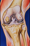 Osteoarthritic Knee Photographic Print by John Bavosi