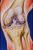 Osteoarthritic Knee Prints by John Bavosi