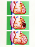 Heart Disease: Ischaemia, Infarction, Pericarditis Photographic Print by John Bavosi