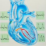Artwork of Cardiac Arrhythmia with Heart & ECGs Photographic Print by John Bavosi