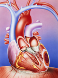 Artwork of a Heart Damaged by Ischaemia Photographic Print by John Bavosi